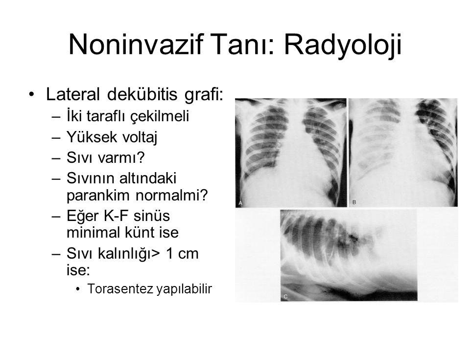 Noninvazif Tanı: Radyoloji