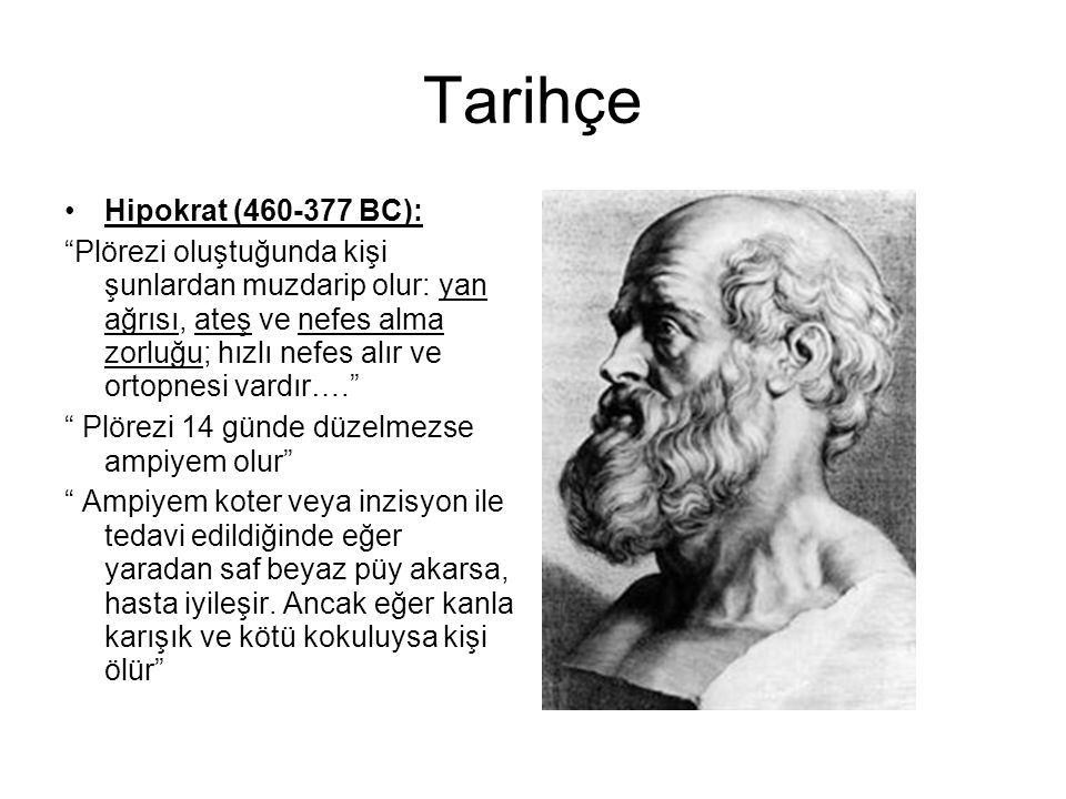 Tarihçe Hipokrat (460-377 BC):