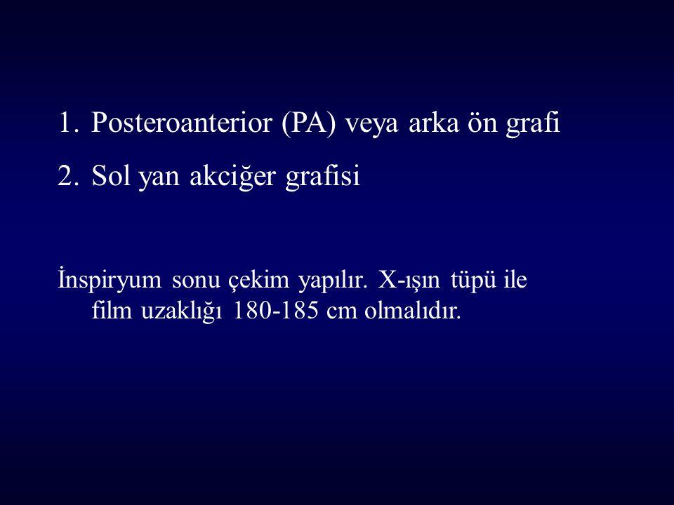 Posteroanterior (PA) veya arka ön grafi Sol yan akciğer grafisi