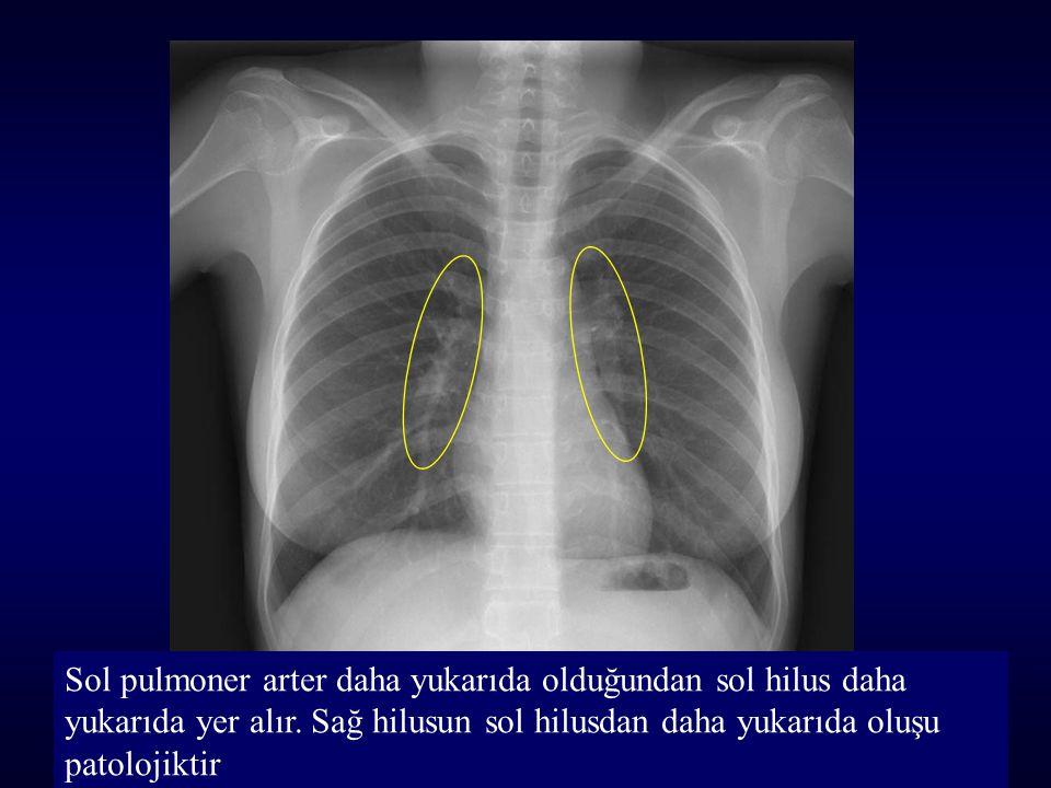 Sol pulmoner arter daha yukarıda olduğundan sol hilus daha yukarıda yer alır.