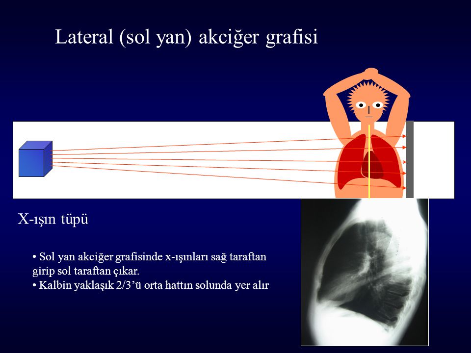 Lateral (sol yan) akciğer grafisi