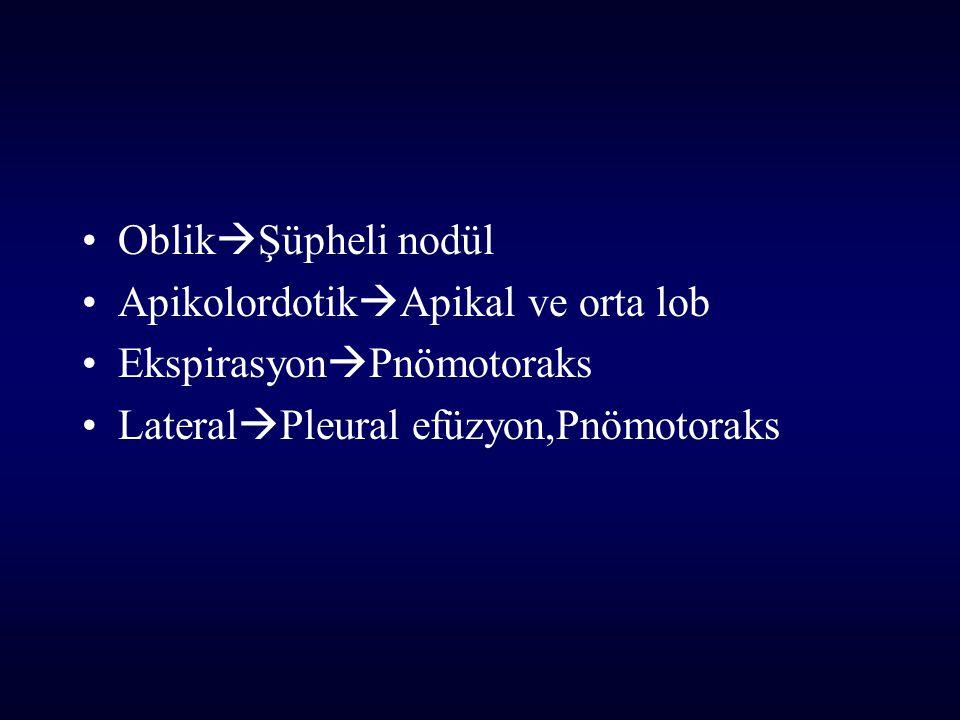 OblikŞüpheli nodül ApikolordotikApikal ve orta lob.