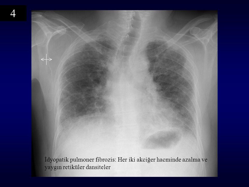 4 İdyopatik pulmoner fibrozis: Her iki akciğer hacminde azalma ve yaygın retiküler dansiteler