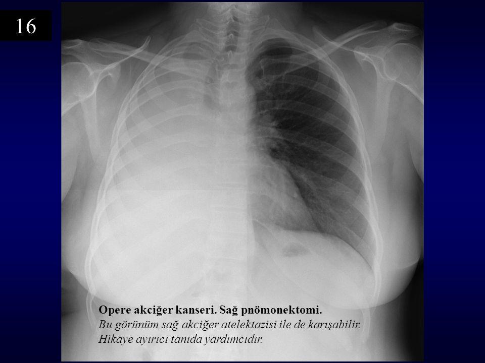 16 Opere akciğer kanseri. Sağ pnömonektomi.
