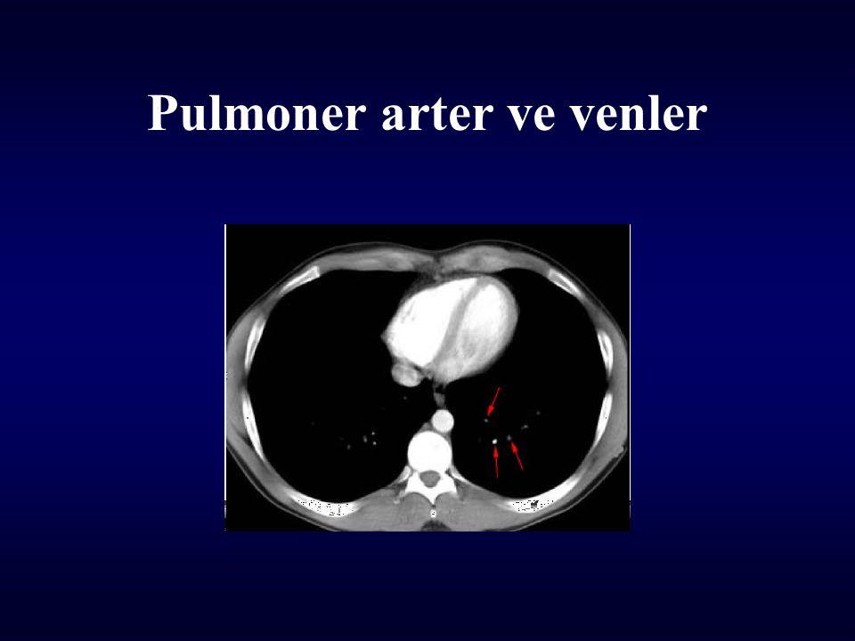 Pulmoner arter ve venler