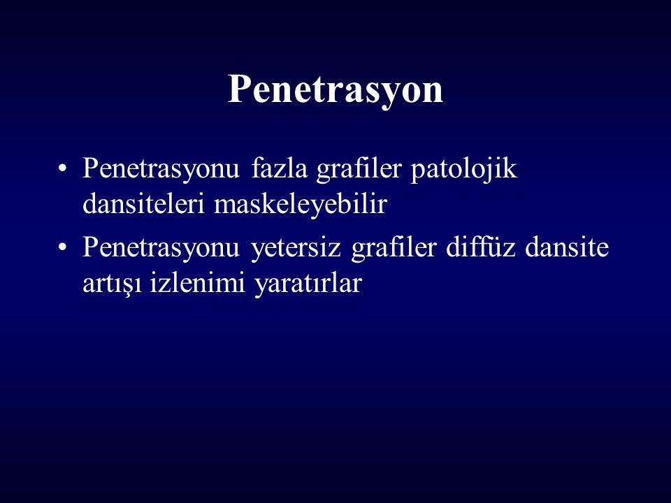 Penetrasyon Penetrasyonu fazla grafiler patolojik dansiteleri maskeleyebilir.