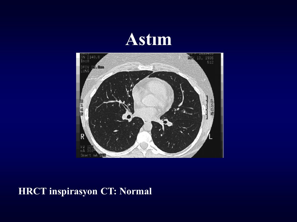 Astım HRCT inspirasyon CT: Normal