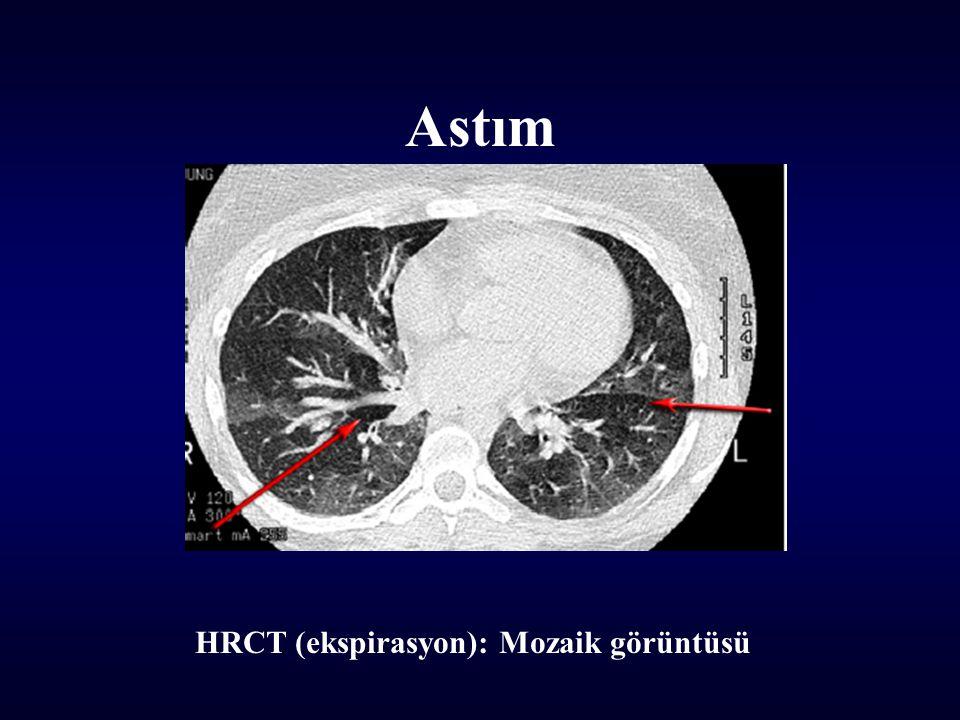 Astım HRCT (ekspirasyon): Mozaik görüntüsü