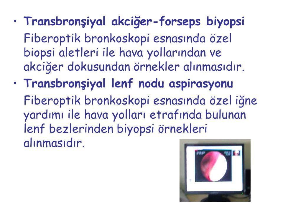 Transbronşiyal akciğer-forseps biyopsi