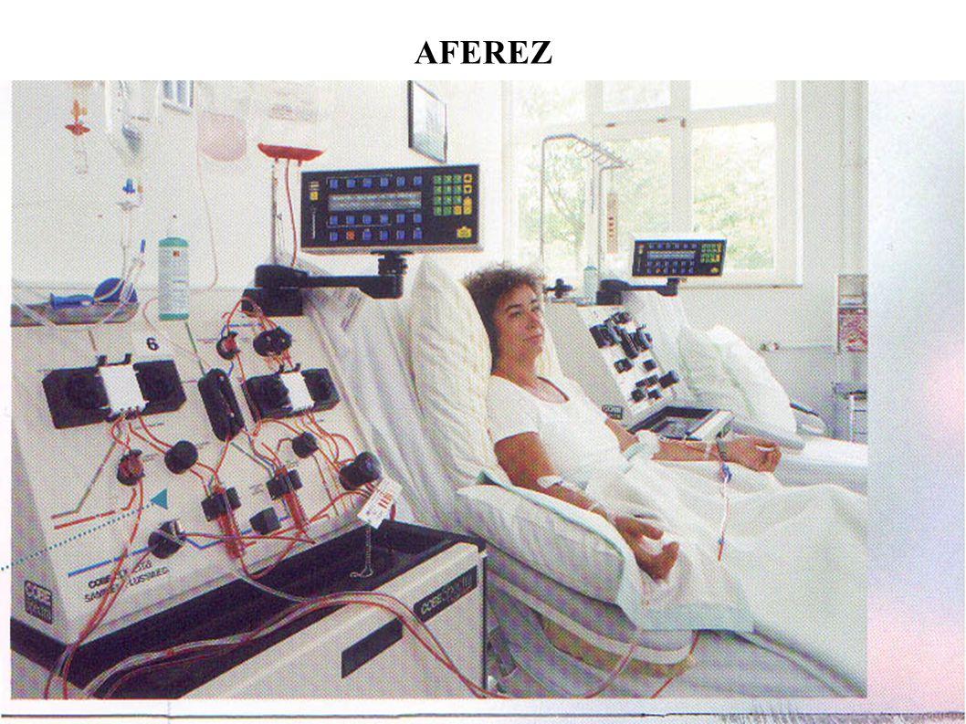 AFEREZ
