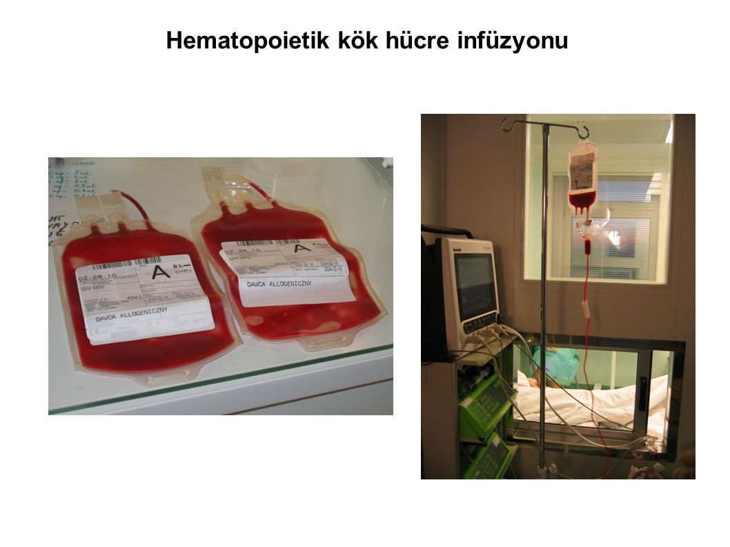 Hematopoietik kök hücre infüzyonu