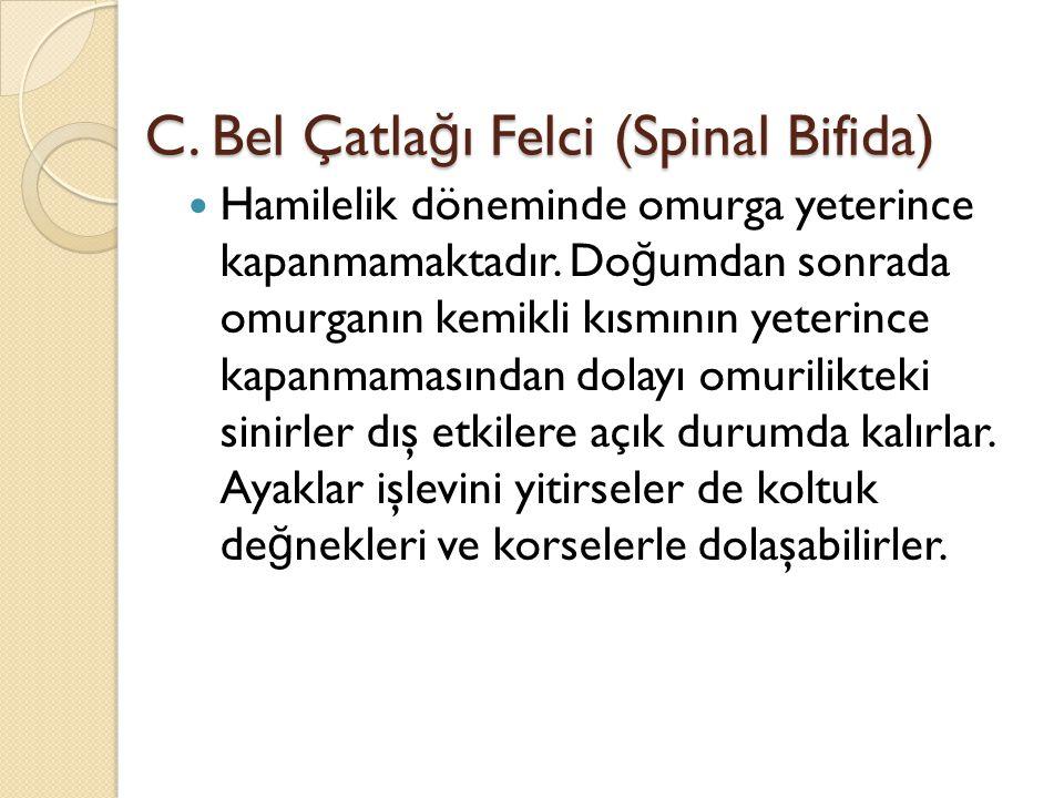 C. Bel Çatlağı Felci (Spinal Bifida)