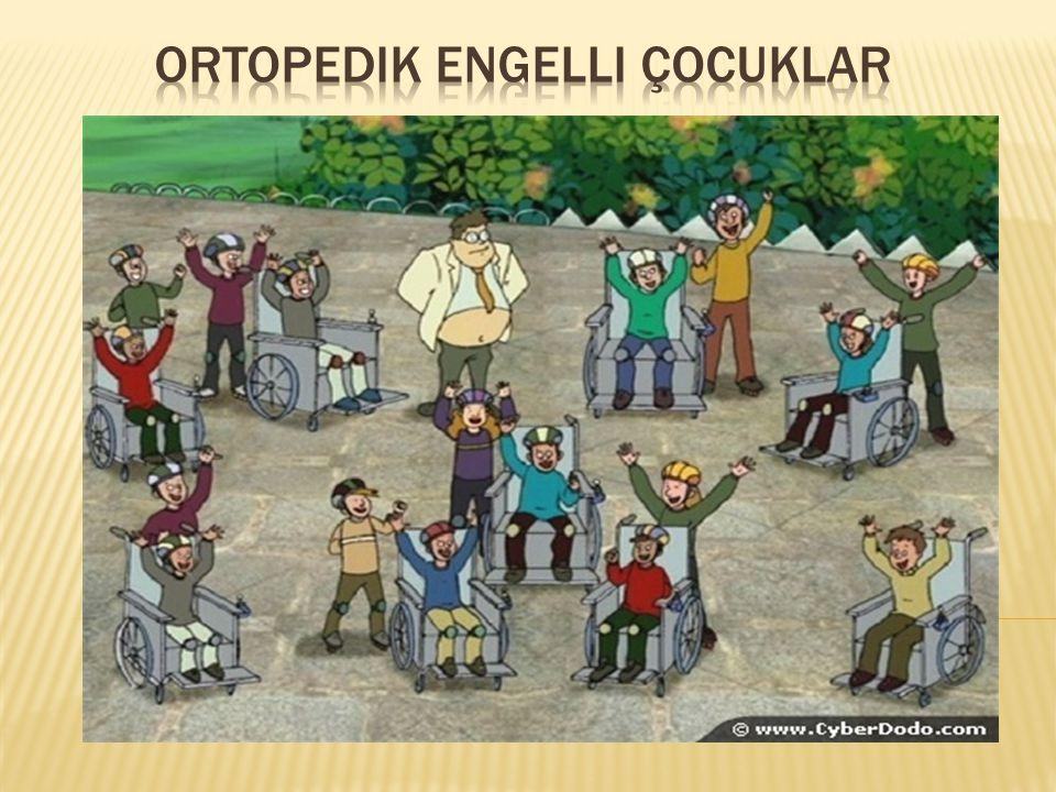 Ortopedik engelli çocuklar