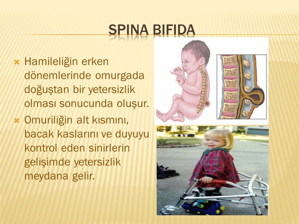 Spina Bifida Hamileliğin erken dönemlerinde omurgada doğuştan bir yetersizlik olması sonucunda oluşur.