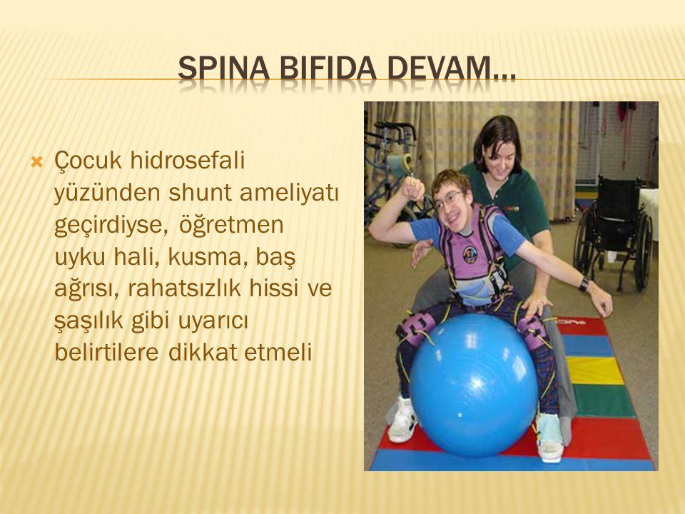 Spina bifida devam...