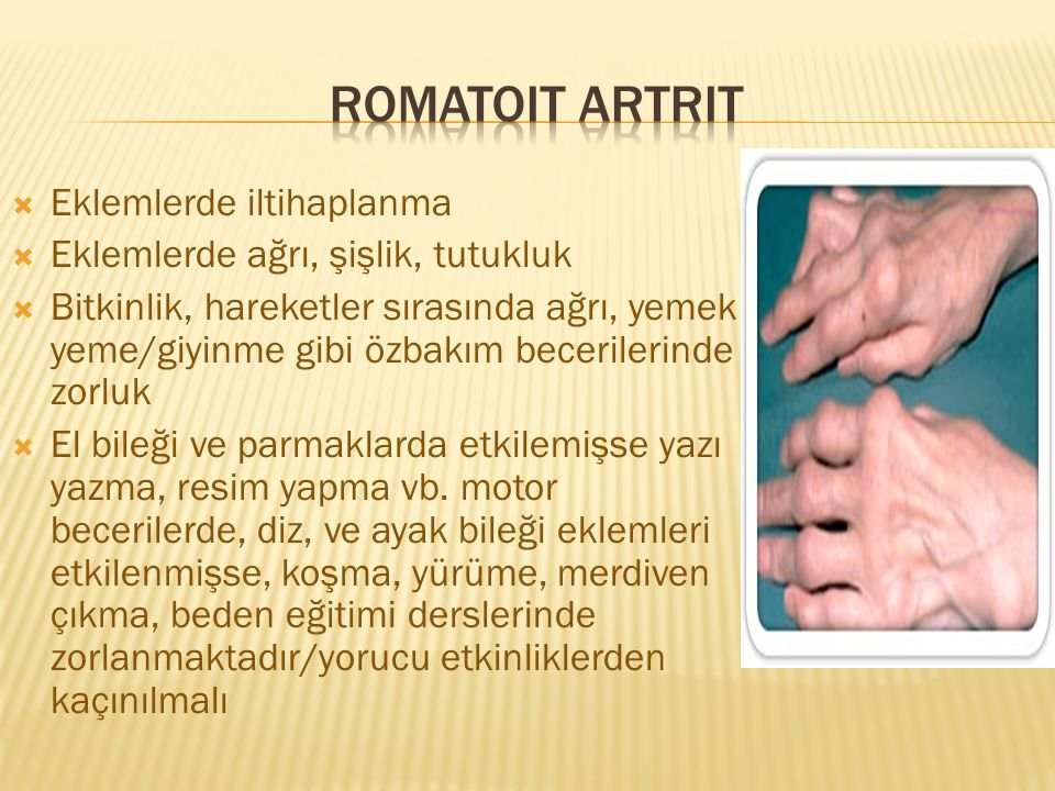 Romatoit artrit Eklemlerde iltihaplanma