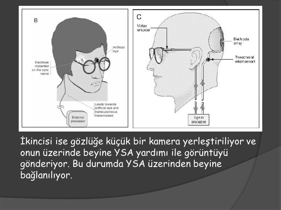 İkincisi ise gözlüğe küçük bir kamera yerleştiriliyor ve onun üzerinde beyine YSA yardımı ile görüntüyü gönderiyor.