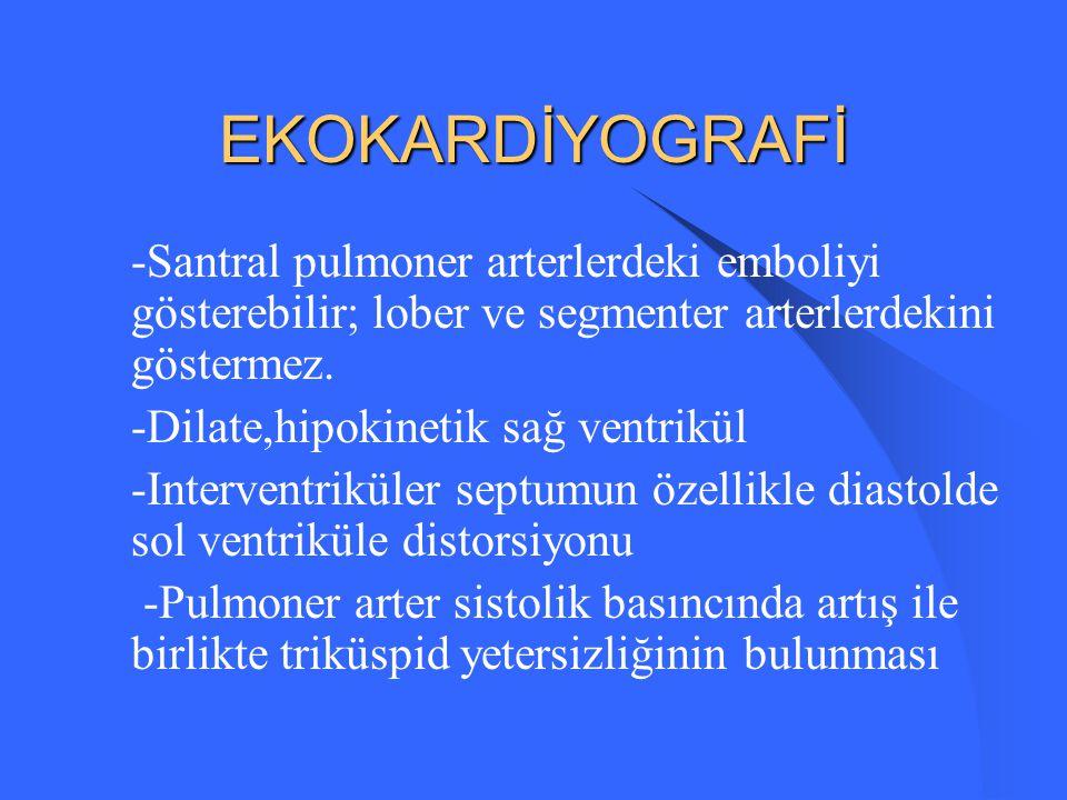 EKOKARDİYOGRAFİ -Santral pulmoner arterlerdeki emboliyi gösterebilir; lober ve segmenter arterlerdekini göstermez.