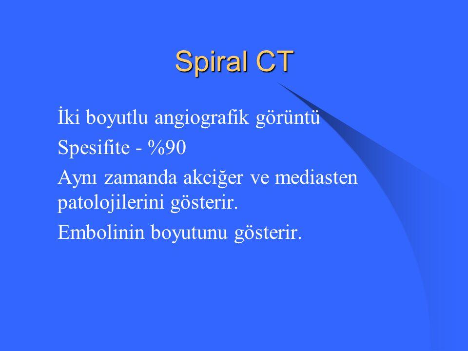 Spiral CT İki boyutlu angiografik görüntü Spesifite - %90