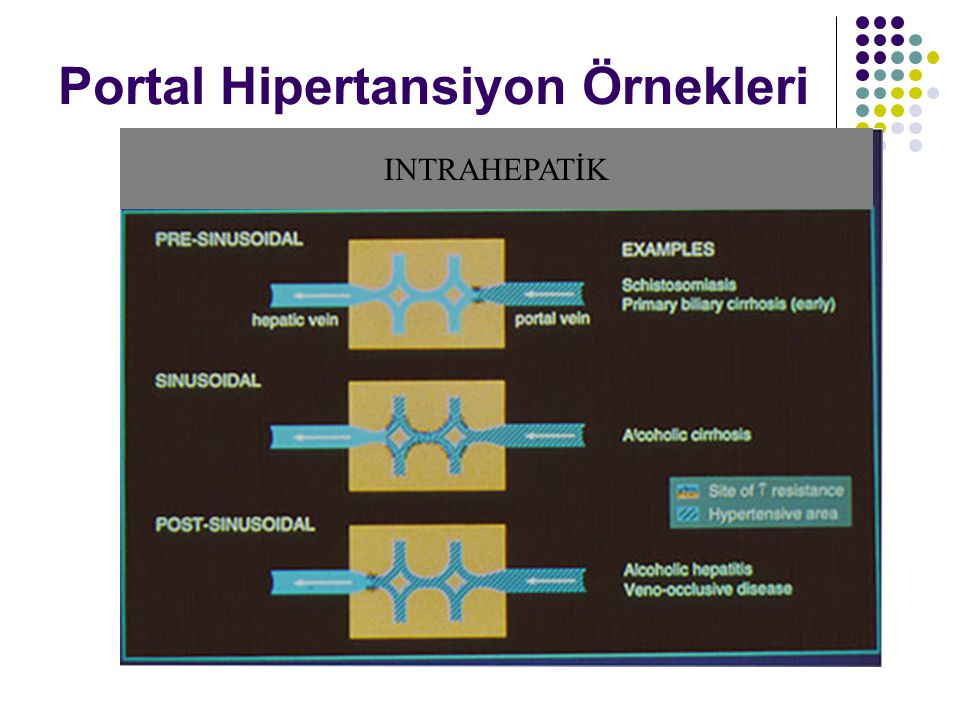 Portal Hipertansiyon Örnekleri