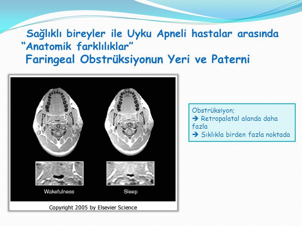 Sağlıklı bireyler ile Uyku Apneli hastalar arasında Anatomik farklılıklar Faringeal Obstrüksiyonun Yeri ve Paterni