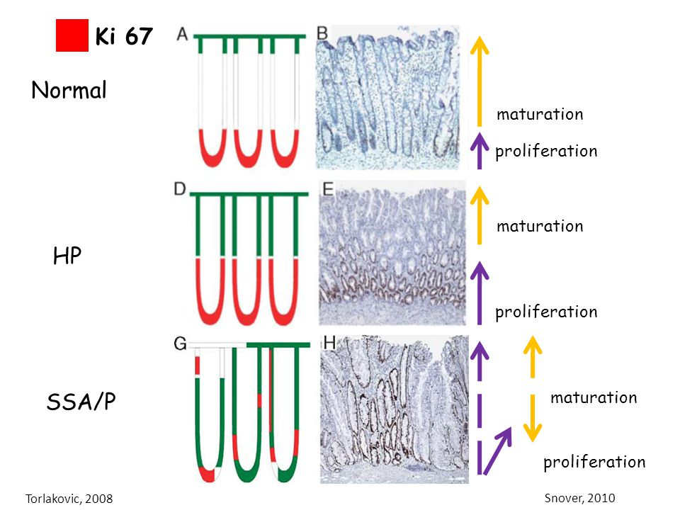 Ki 67 Normal HP SSA/P CK20 maturation Ki67 proliferation maturation