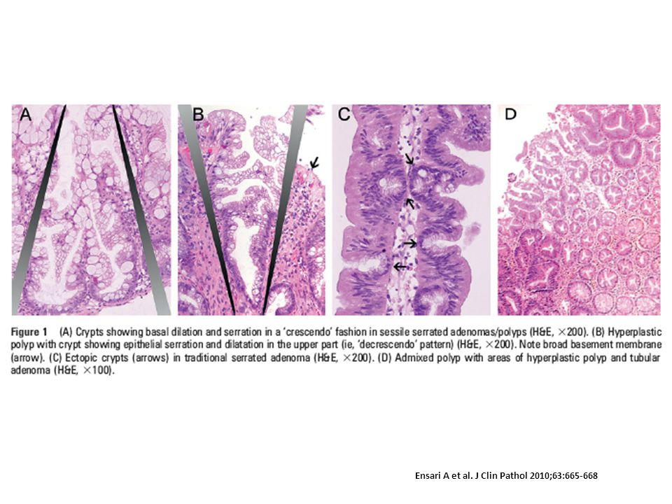 (A) Crypts showing basal dilation and serration in a 'crescendo' fashion in sessile serrated adenomas/polyps (H&E, ×200). (B) Hyperplastic polyp with crypt showing epithelial serration and dilatation in the upper part (ie, 'decrescendo' pattern) (H&E, ×200). Note broad basement membrane (arrow). (C) Ectopic crypts (arrows) in traditional serrated adenoma (H&E, ×200). (D) Admixed polyp with areas of hyperplastic polyp and tubular adenoma (H&E, ×100).