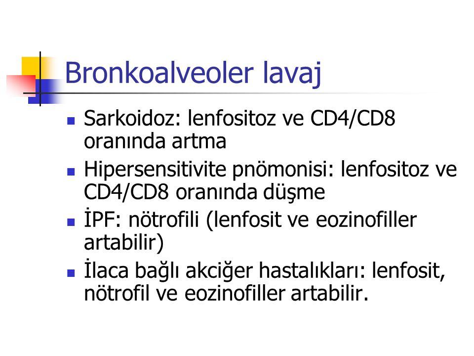 Bronkoalveoler lavaj Sarkoidoz: lenfositoz ve CD4/CD8 oranında artma