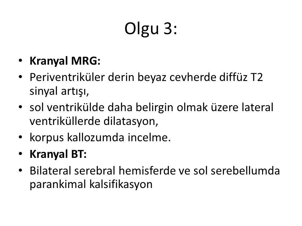 Olgu 3: Kranyal MRG: Periventriküler derin beyaz cevherde diffüz T2 sinyal artışı,