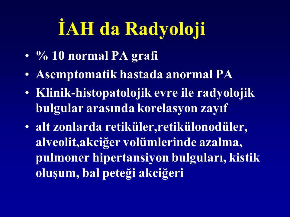 İAH da Radyoloji % 10 normal PA grafi Asemptomatik hastada anormal PA