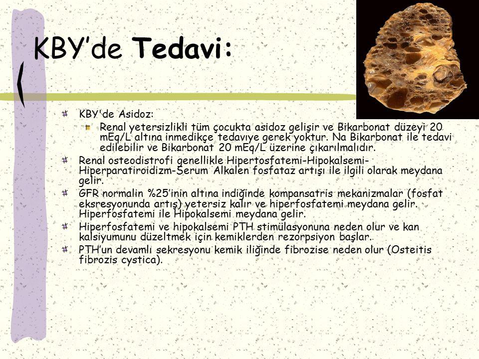 KBY'de Tedavi: KBY de Asidoz: