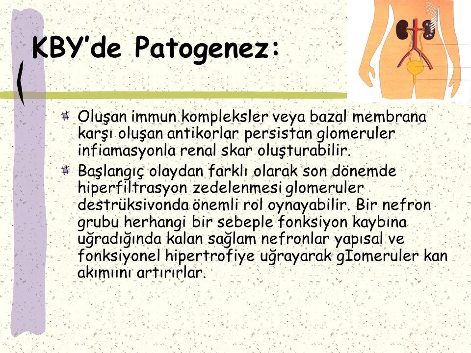 KBY'de Patogenez: Oluşan immun kompleksler veya bazal membrana karşı oluşan antikorlar persistan glomeruler infiamasyonla renal skar oluşturabilir.
