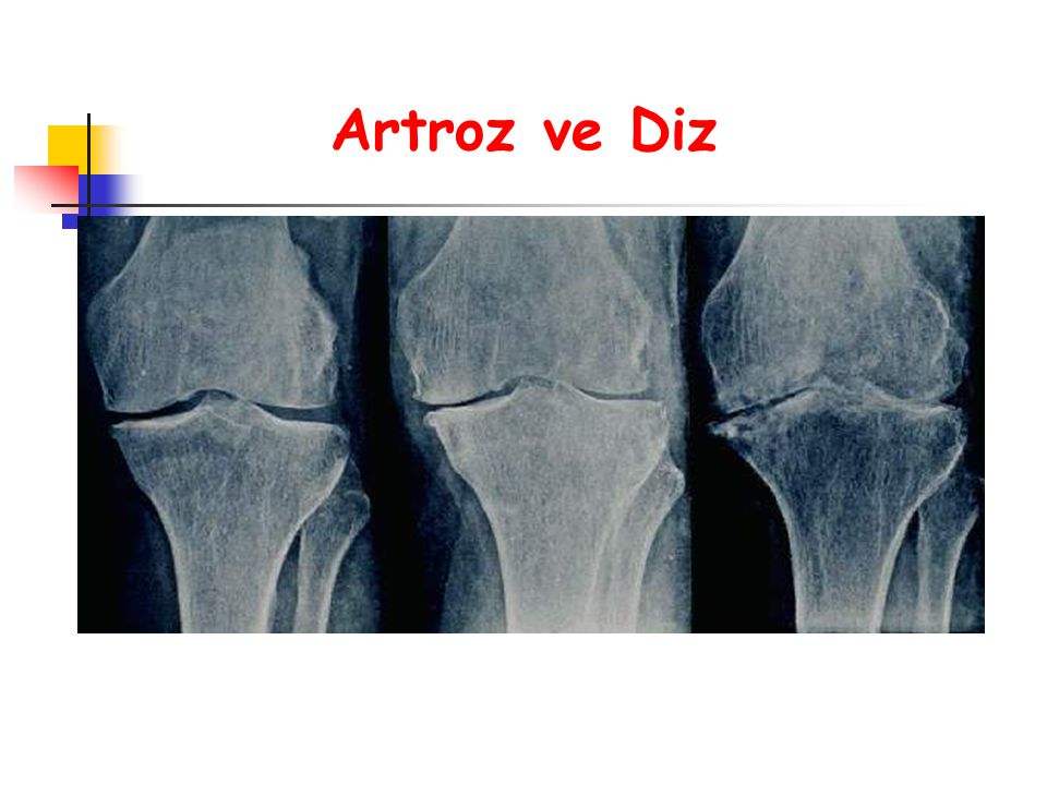 Artroz ve Diz