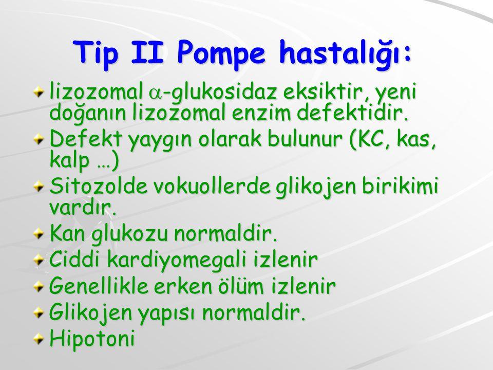 Tip II Pompe hastalığı: