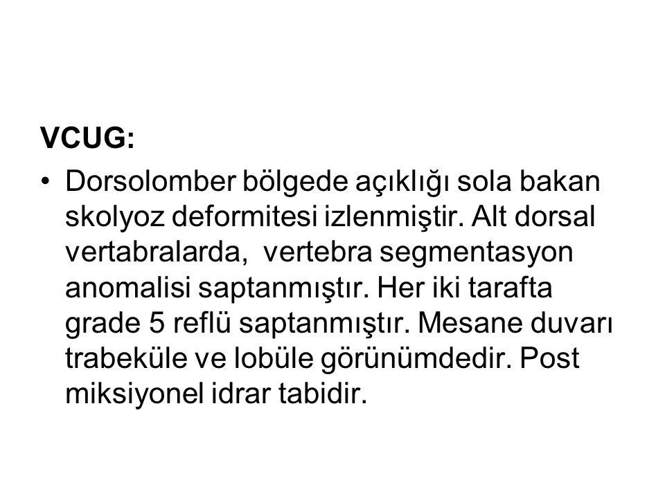 VCUG: