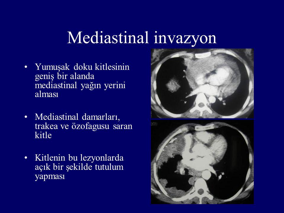 Mediastinal invazyon Yumuşak doku kitlesinin geniş bir alanda mediastinal yağın yerini alması.