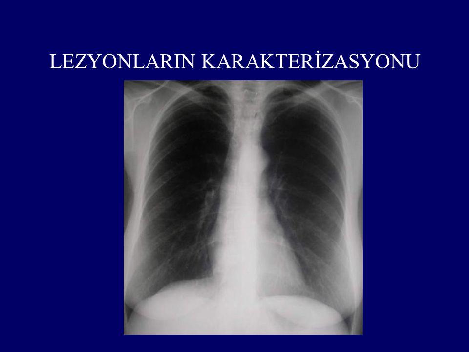 LEZYONLARIN KARAKTERİZASYONU