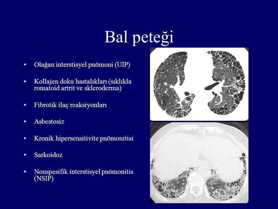Bal peteği Olağan interstisyel pnömoni (UIP)