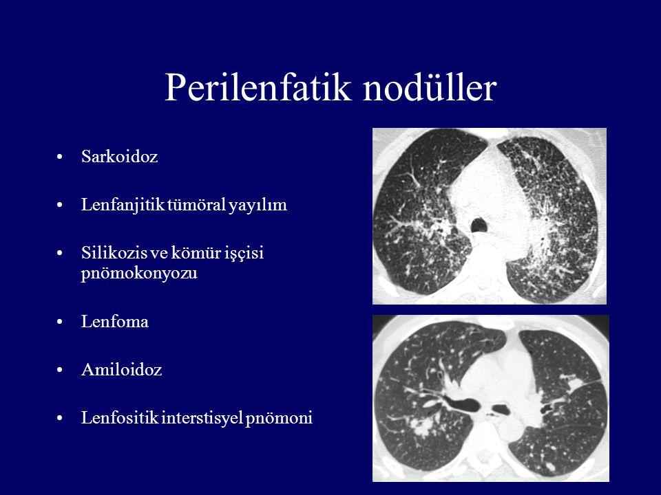 Perilenfatik nodüller