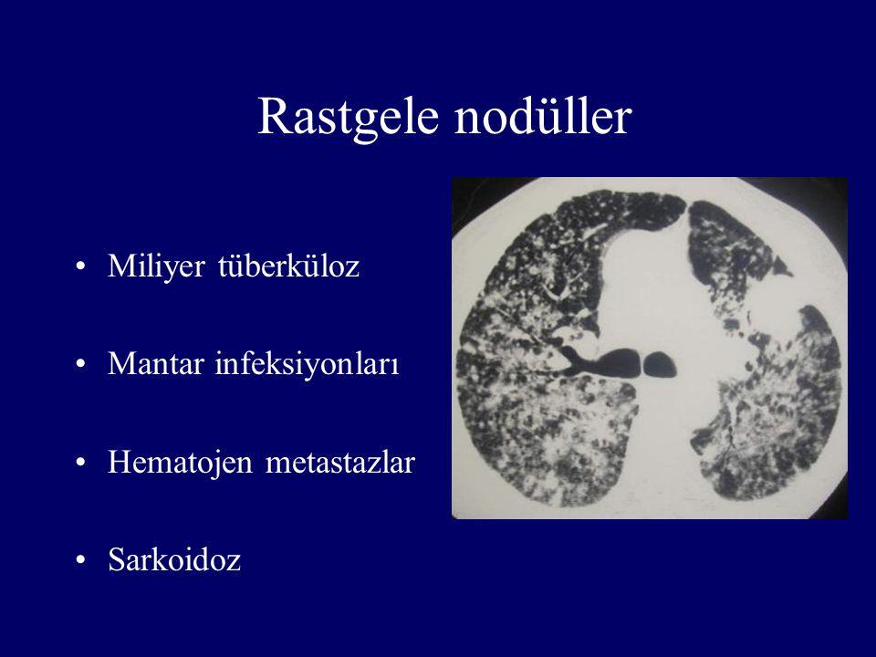 Rastgele nodüller Miliyer tüberküloz Mantar infeksiyonları