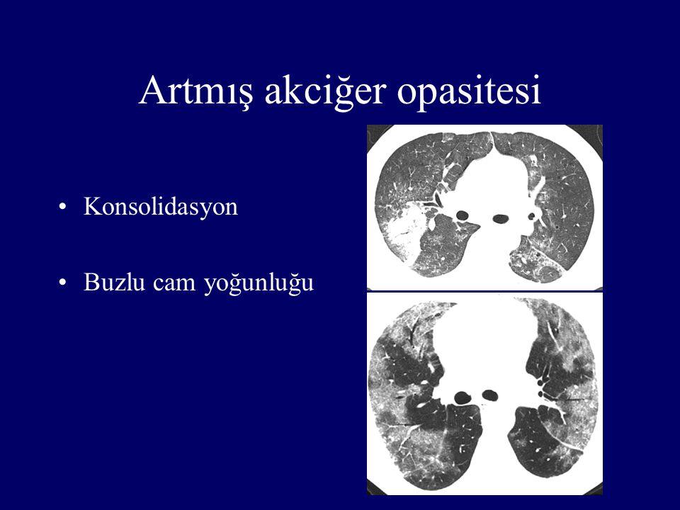 Artmış akciğer opasitesi