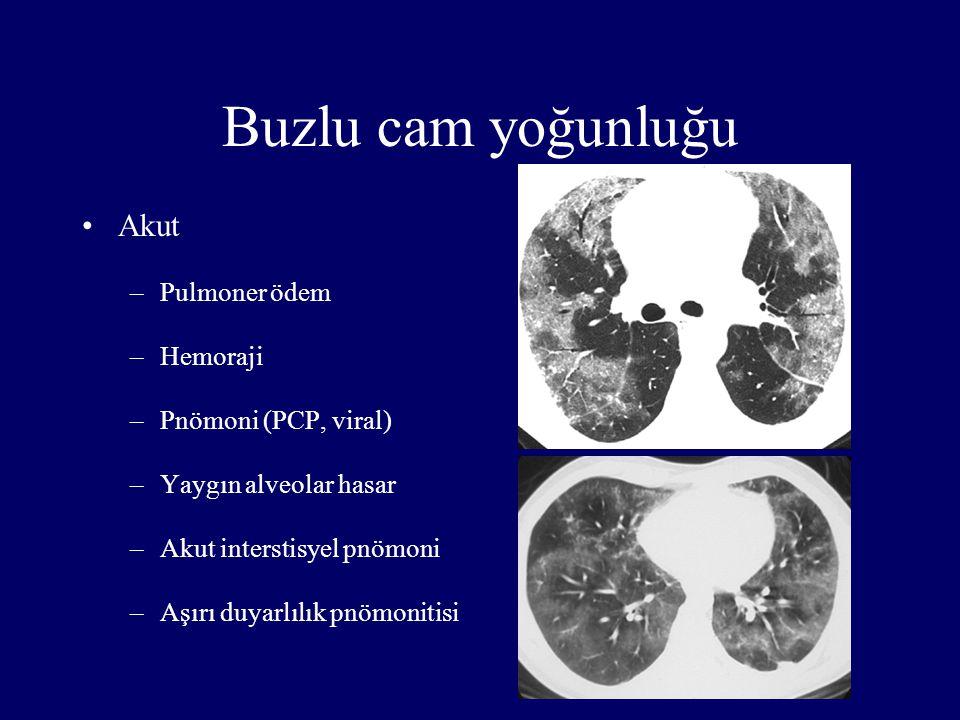 Buzlu cam yoğunluğu Akut Pulmoner ödem Hemoraji Pnömoni (PCP, viral)