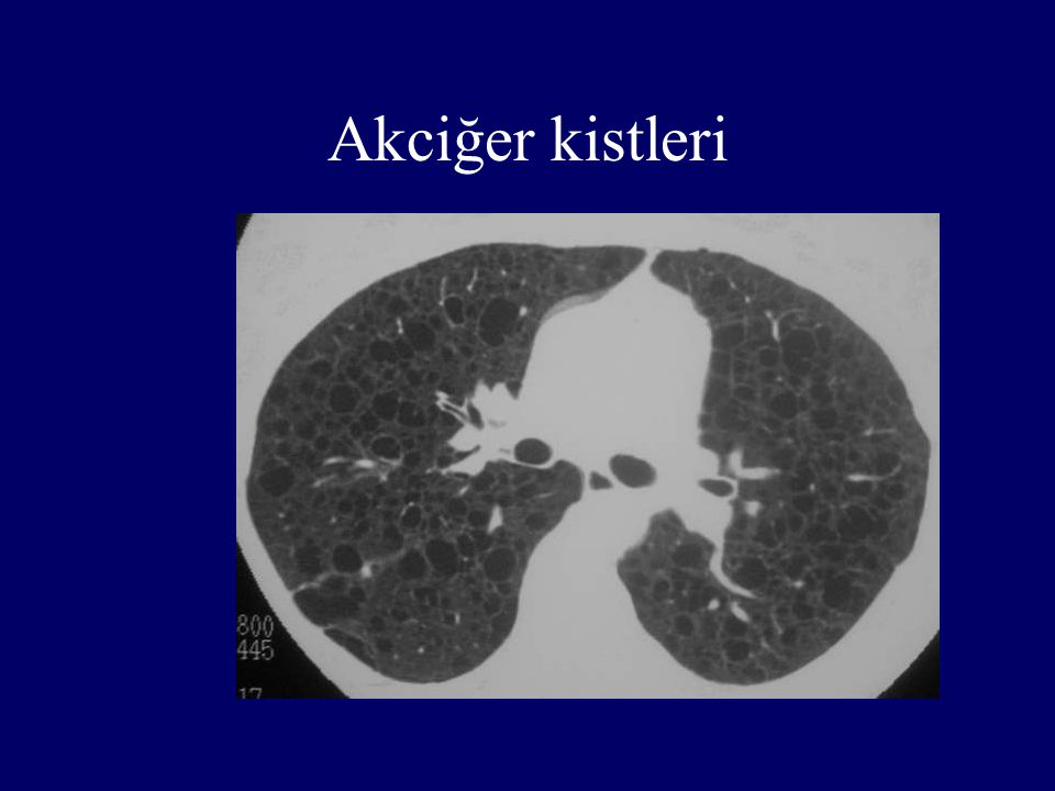 Akciğer kistleri