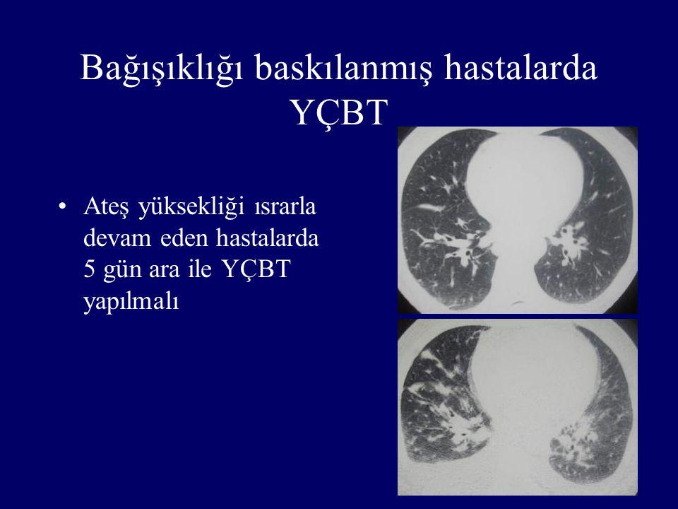 Bağışıklığı baskılanmış hastalarda YÇBT
