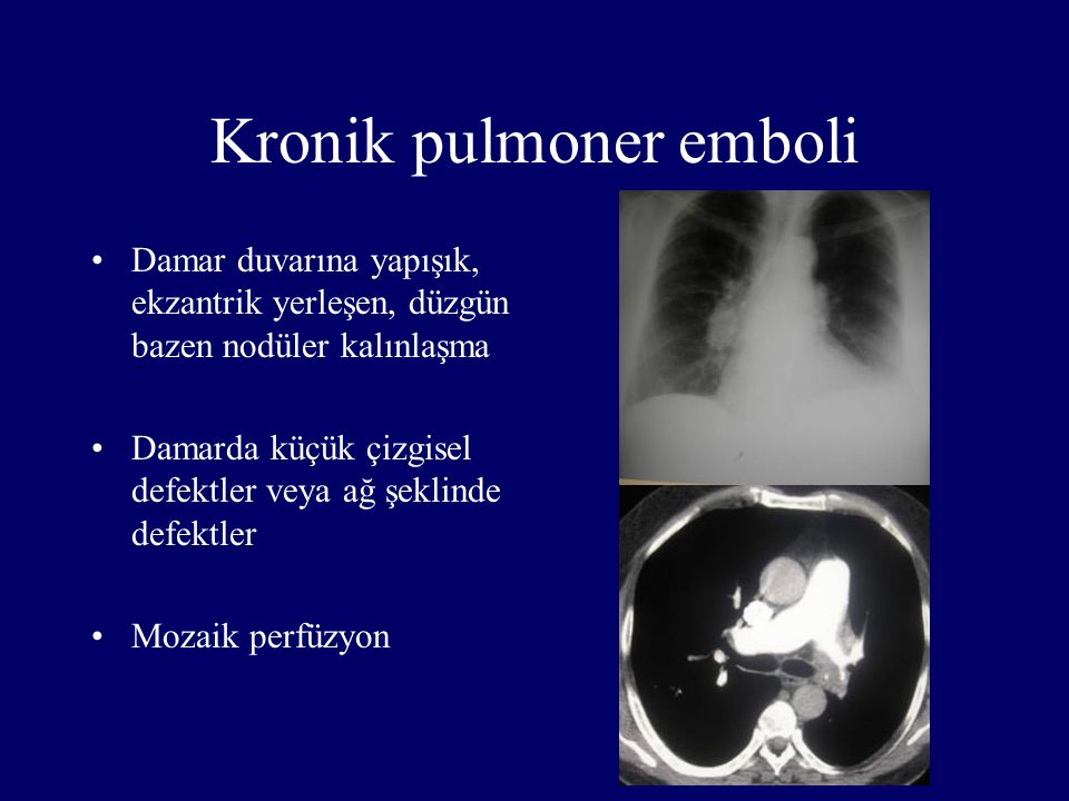 Kronik pulmoner emboli