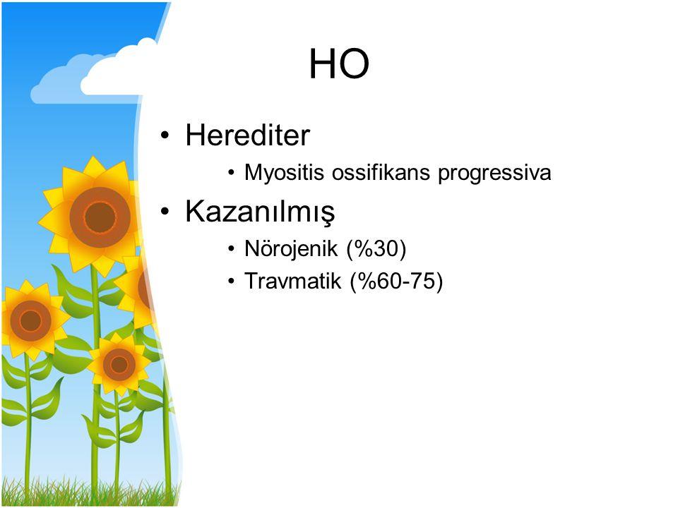 HO Herediter Kazanılmış Myositis ossifikans progressiva
