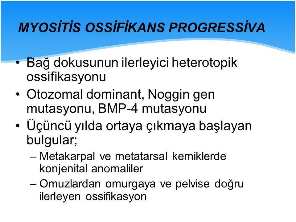MYOSİTİS OSSİFİKANS PROGRESSİVA