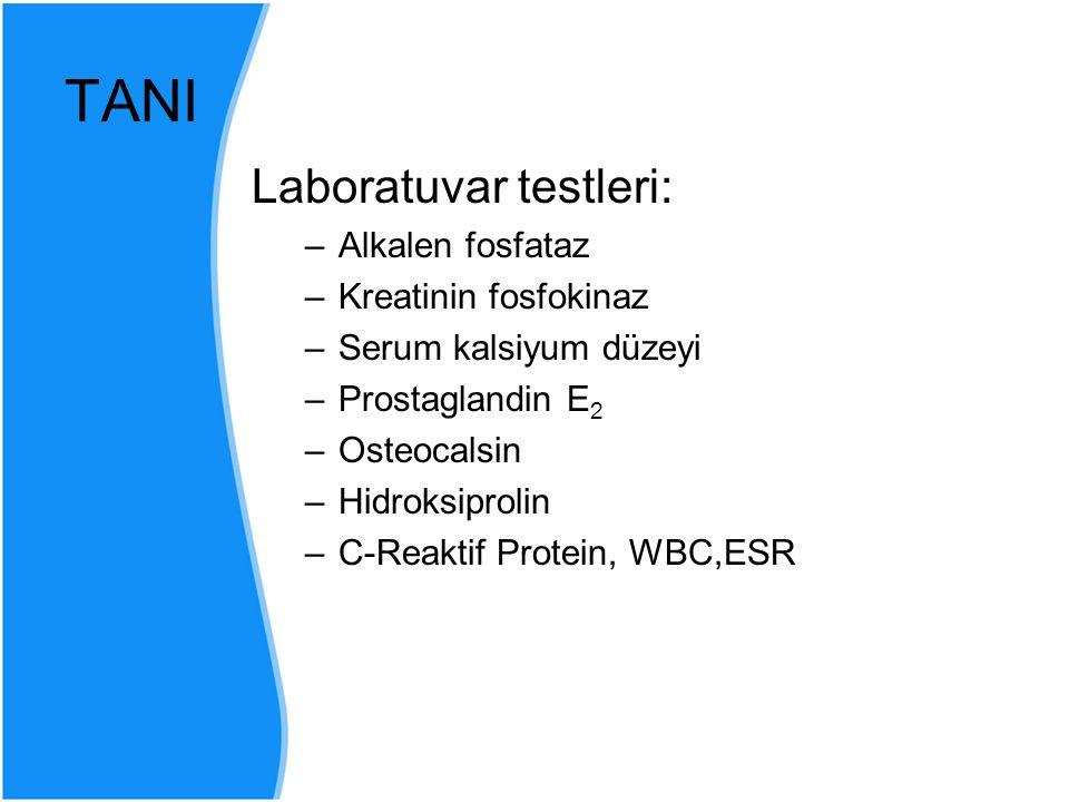 TANI Laboratuvar testleri: Alkalen fosfataz Kreatinin fosfokinaz