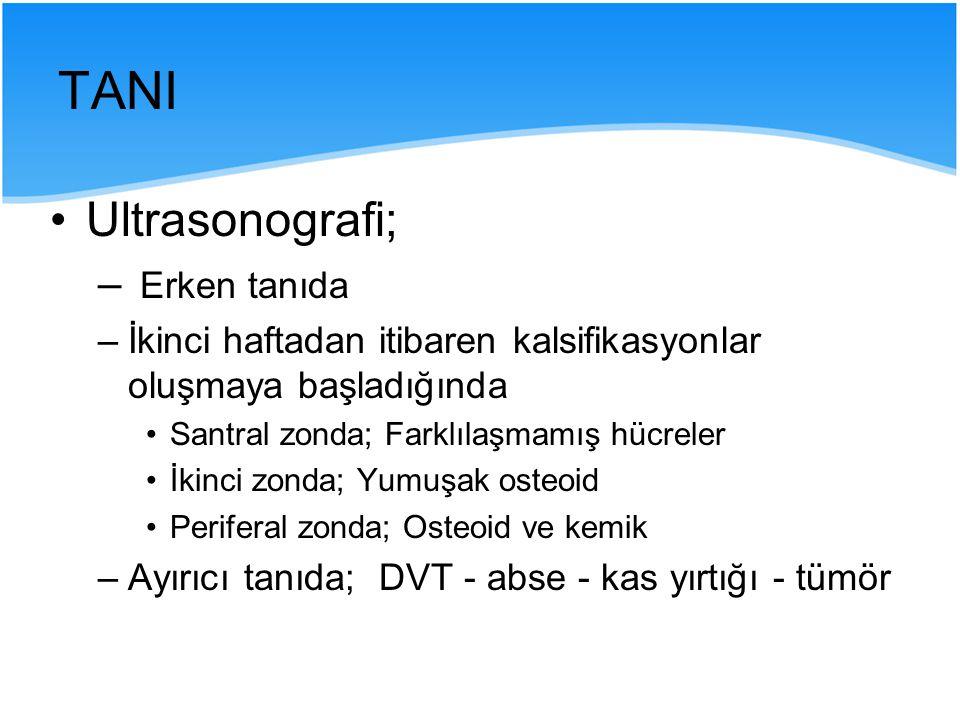 TANI Ultrasonografi; Erken tanıda