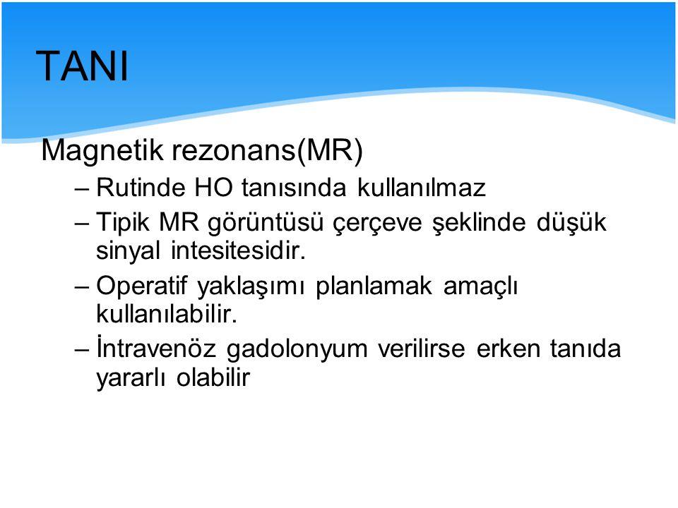 TANI Magnetik rezonans(MR) Rutinde HO tanısında kullanılmaz